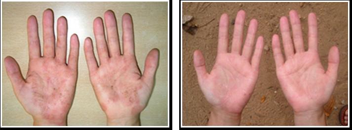 ひどい手荒れ(左)もたった1回のアーユルヴェーダの施術でここまで綺麗になります(右)